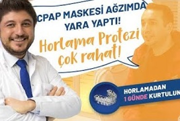 CPAP Maskesi Ağzımda Yara Yaptı, Horlama Protezi Kullanımı Çok Rahat