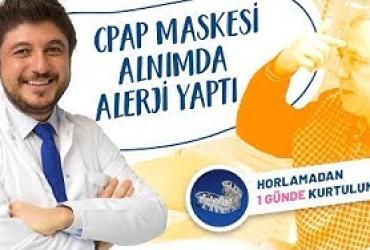 CPAP maskesi alnımda alerji yaptı